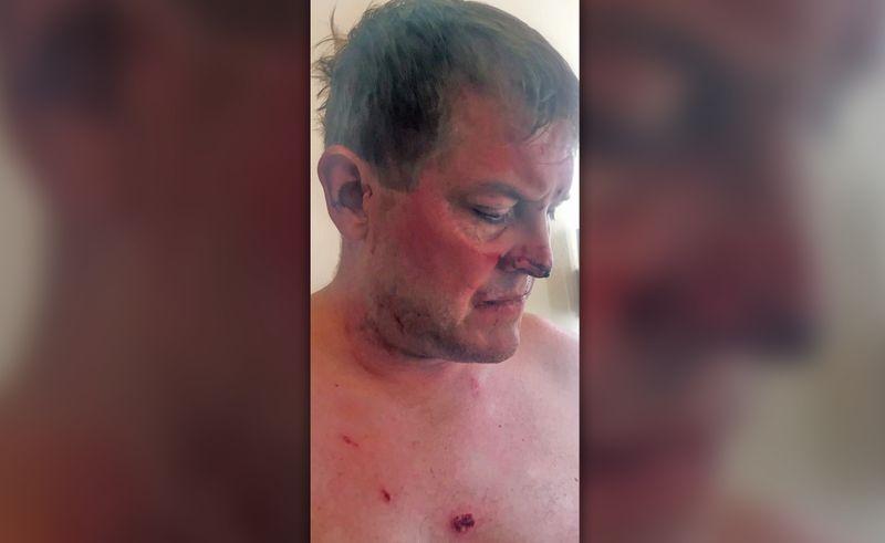 Турист убил сотрудника отеля